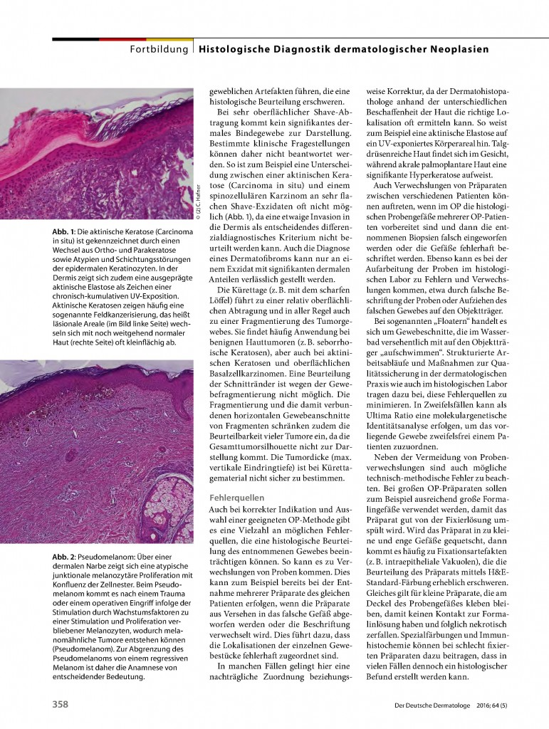http://www.dermatohistologie.bayern/wp-content/uploads/2016/06/file-page3-771x1024.jpg