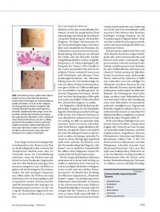 https://www.dermatohistologie.bayern/wp-content/uploads/2016/06/file-page4-226x300.jpg